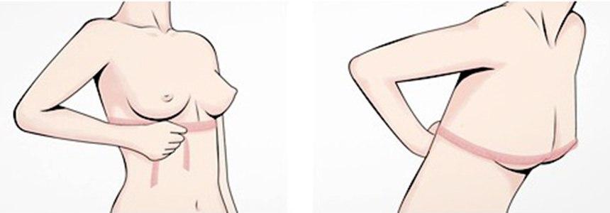 下胸圍vs上胸圍差別